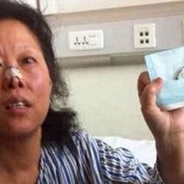 Ζούσε με μία σφαίρα στο κεφάλι της για 48 χρόνια